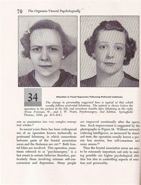Do you need a lobotomy? Lobotomy Before and After pics