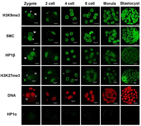 Histone H4K20me3 and HP1α are late heterochromatin markers