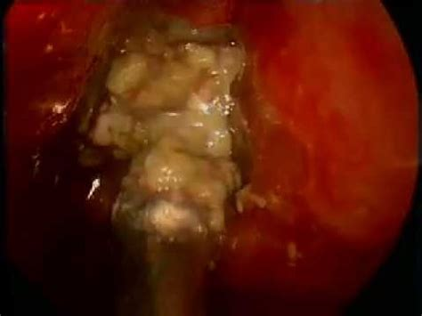 Endoscopic Removal Of Left Maxillary Sinus Fungal Ball
